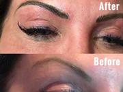 Eyebrow Micro balding
