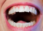 Give best care to your teeth and gums and lead a quality life