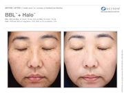 Halo Hybrid Fractional Laser Treatment in Orlando