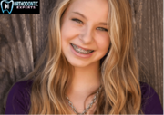 high quality Invisalign Treatment in Chicago